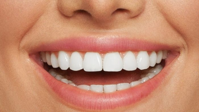 What are Teeth Covers, and How do They Work