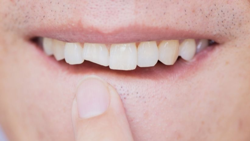 How to Fix a Chipped Tooth - the Alpha Veneers Way